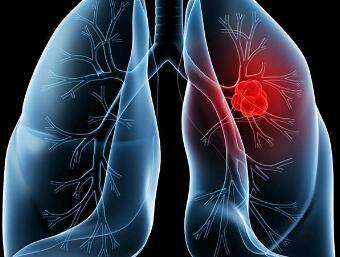 肺癌手术前的准备工作