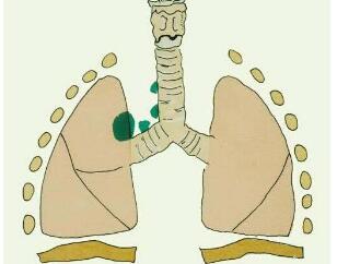 肺癌脑转移需怎样治疗
