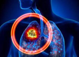 肺癌化疗后存在的危害