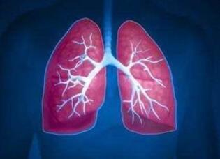 肺癌放射治疗的常识