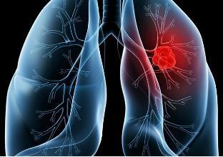 肺癌化疗的相关危害