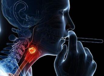 喉癌手术的治疗类型