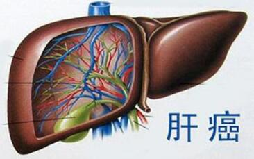 肝癌中医辨证治疗方法