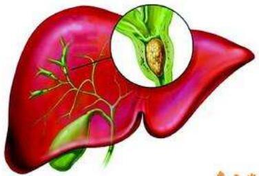 胆管癌手术的治疗类型