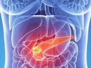 预防胰腺癌的常见方法