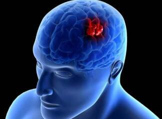 脑瘤的检查方法是什么
