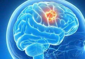 良性脑膜瘤该怎样治疗