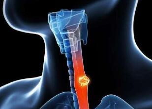 食道癌放疗的效果好吗