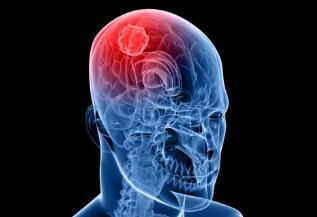 脑瘤的常用治疗类型