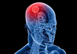脑瘤早期该如何医治呢