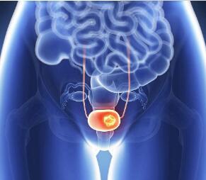 膀胱癌中医的治疗优势