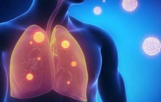 肺癌中医如何辨证论治