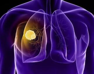 肺癌放疗的效果好吗
