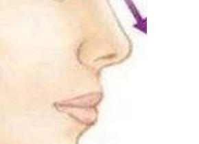 鼻咽癌治疗的不良症状