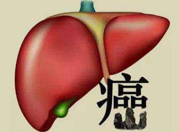肝癌中医的治疗优势