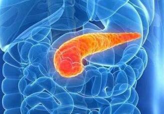 胰腺癌手术的治疗类型