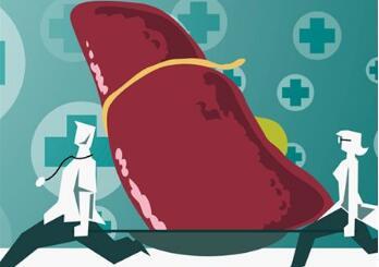 肝癌治疗存在的误区