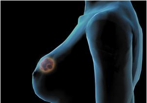 乳腺癌早期并发症
