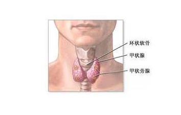淋巴结肿大是患有甲状腺癌吗